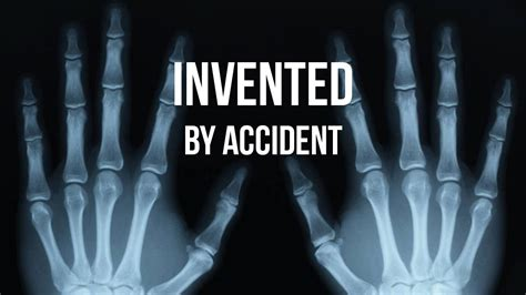 10 Inventions That Changed The World, But Were Made By Mistake