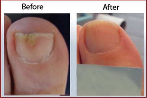 Beauchamp Foot Care Launches Summer Offer for Toenail