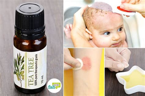 Use Tea Tree Oil for Fungal Infections: Ringworm, Jock