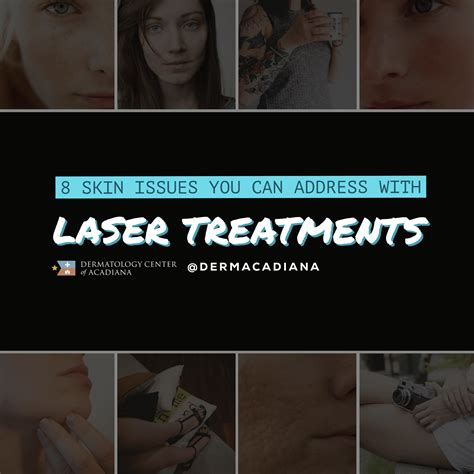 Laser Treatment: 8 Skin Issues You Can Treat with a Laser