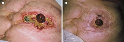 Clinical Features and Treatment of Peristomal Pyoderma