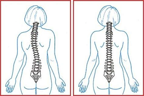 Widow's hump: causes, treatment, how to get rid of with