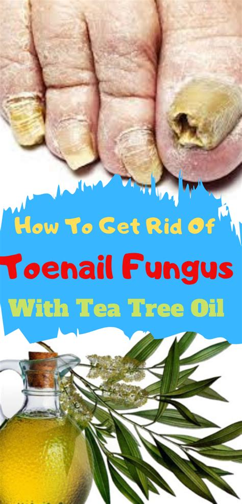Does Tea Tree Oil Work for Nail Fungus? Click Here to