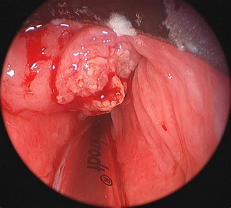 Symptoms and Pictures of Throat Cancer   MedGuidance